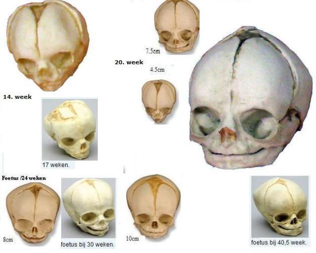 5foetus schedels