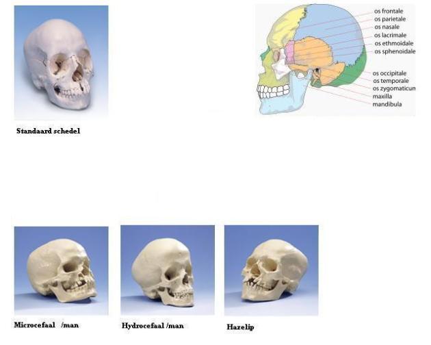man vrouw Vervormende-Menselijke-Schedels-pathologieen