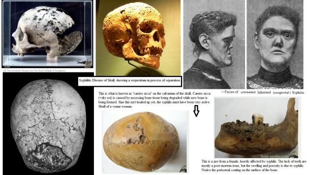syfillis skulls