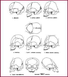 Types of cranial deformation in the Eastern US (Neumann, 1995).