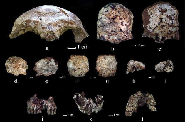 fdxgdjf  laos schedels