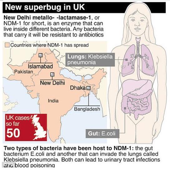 new superbug UK